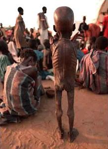 Undernourished child- The Famine