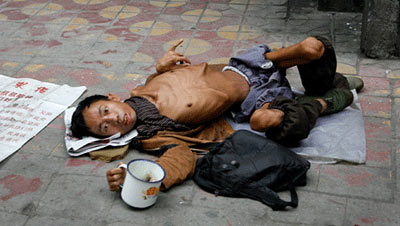 Bambino malnutrito in Cina - la FAME