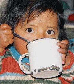Nino desnutrido el HAMBRE